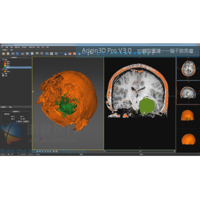 基于Arigin3D Pro V3.0的脑干胶质瘤3D模型重建